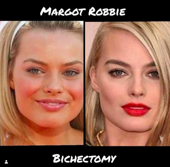 Le avant après de Margot Robbie Bichectomy